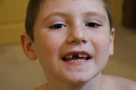 Tyler lost tooth #2!